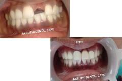 Dental-clinic-mallapur-nacharam