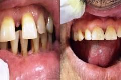dental-clinics-near-ecil