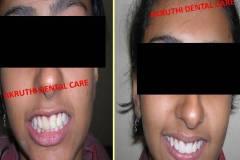 smile-designing-Akruthi-dental-care
