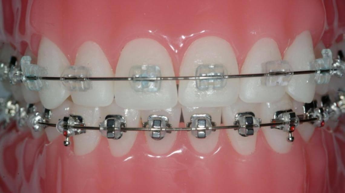 ceramic-braces-vs-metal-braces-akruthi-dental