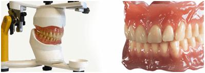 dentures-treatment-mallapur