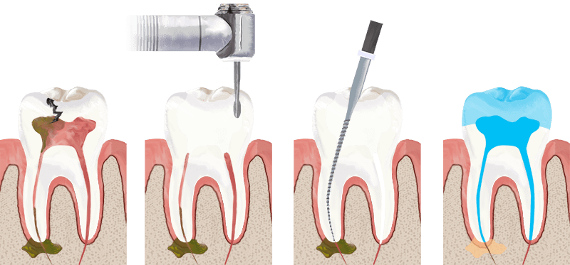 root-canal-treatment-in-mallapur