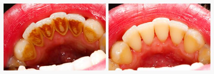 scale-and-polish-akruthi-dental-care